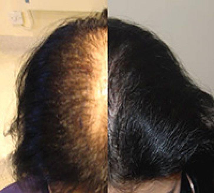 Выпадение волос у женщин: причины и лечение   университетская клиника