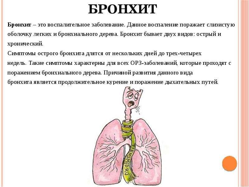 Рецидивирующий бронхит у детей - симптомы болезни, профилактика и лечение рецидивирующего бронхита у детей, причины заболевания и его диагностика на eurolab