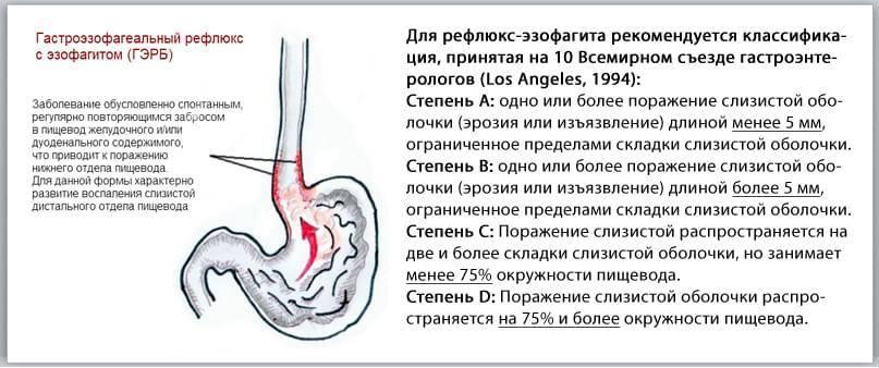 5 фактов о гастроэзофагеальной рефлюксной болезни у детей