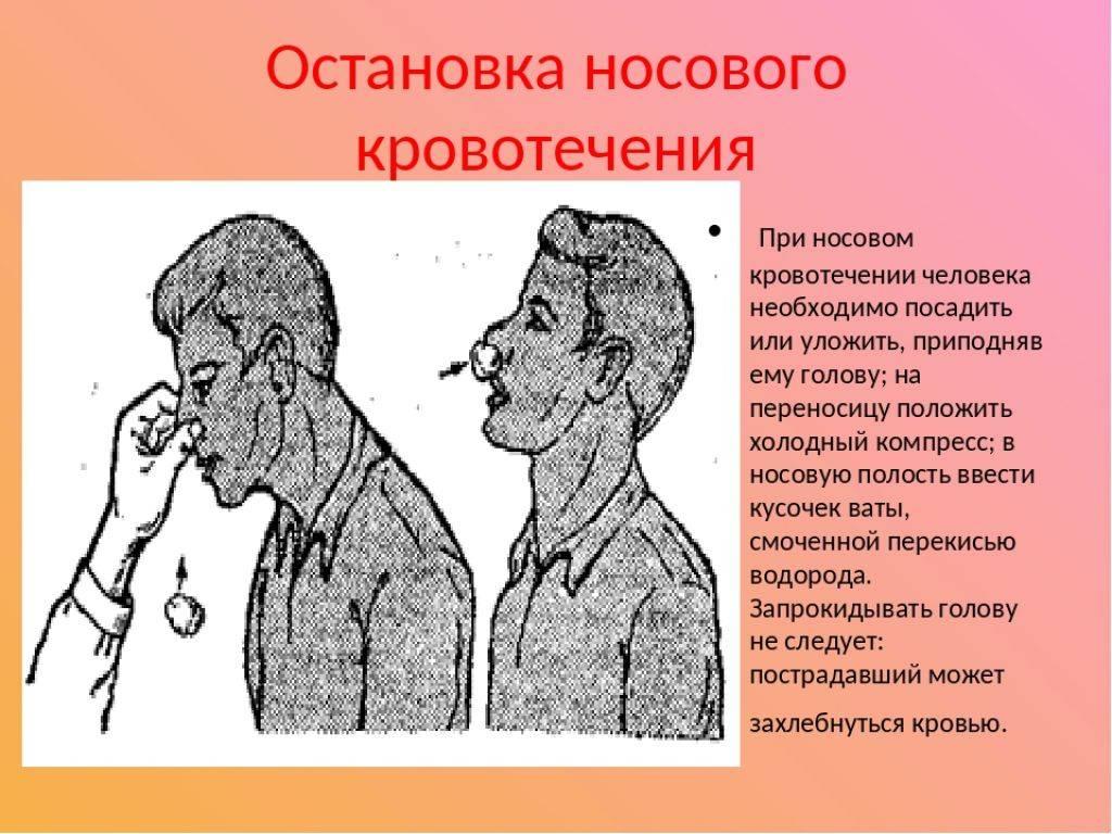 Кровотечение из носа: причины, как быстро остановить