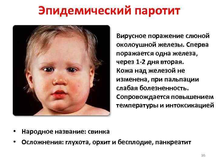 Эпидемический паротит. вакцины.