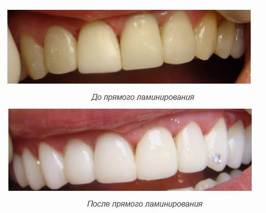 Фторирование зубов, стоимость фторирования зубов, глубокое фторирование зубов.