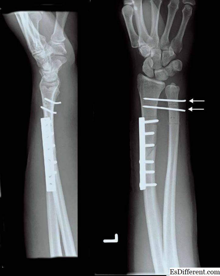 Перелом дистального метаэпифиза лучевой кости (перелом лучевой кости «в типичном месте») — симптомы, диагностика, лечение в цкб ран