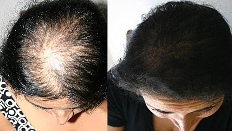Почему выпадают волосы и как остановить выпадение волос – советы врача-трихолога   портал 1nep.ru