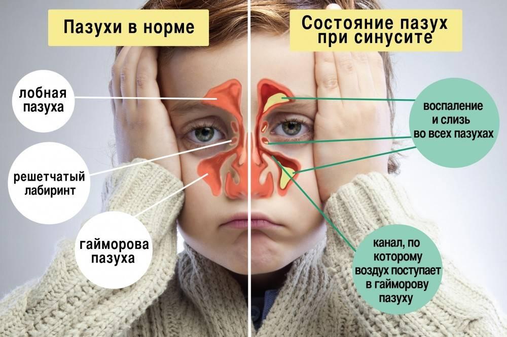 Нужно ли лечить свищ  на десне и как от него избавиться