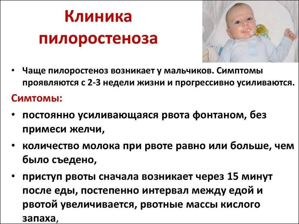Стеноз привратника желудка (пилоростеноз) у детей - доказательная медицина для всех