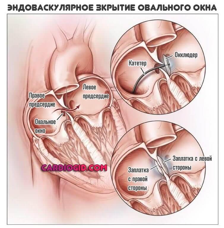 Диагностика сердечно-сосудистых заболеваний