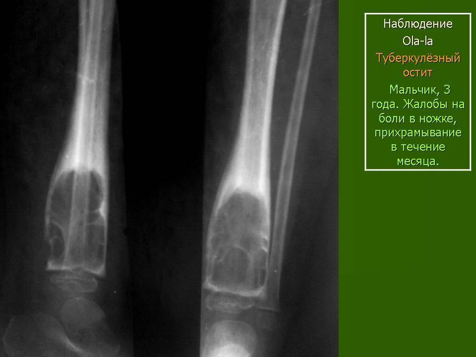 Остеомиелит костей голени: признаки, симптомы, осложнения — онлайн-диагностика