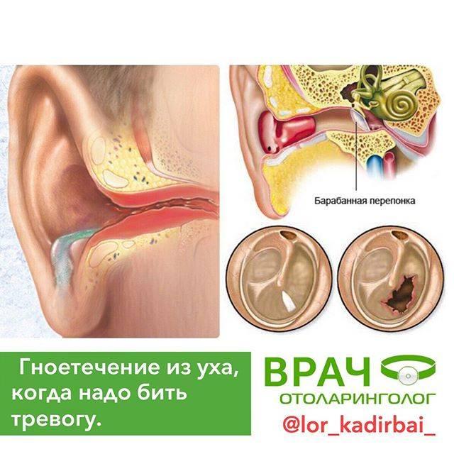 Ощущение заложенности в ушах: причины | компетентно о здоровье на ilive
