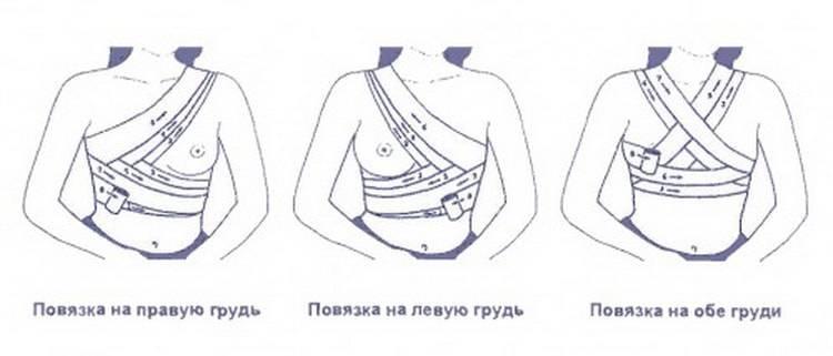 Как перевязать грудные железы для предотвращения лактации: описание методов для завершения грудного вскармливания