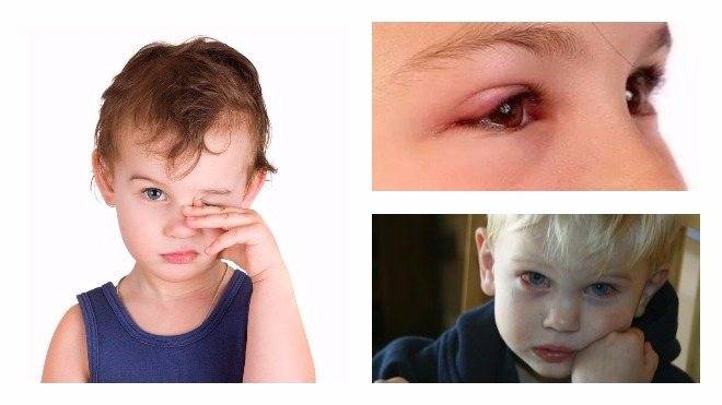 Воспалительные заболевания глаз у детей