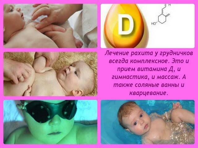 Рахит у ребенка. лечение и профилактика