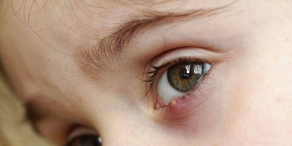 При каких заболеваниях воспалился глаз у ребенка и как справиться с проблемой