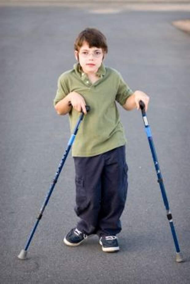 Детский церебральный паралич - дцп   ким