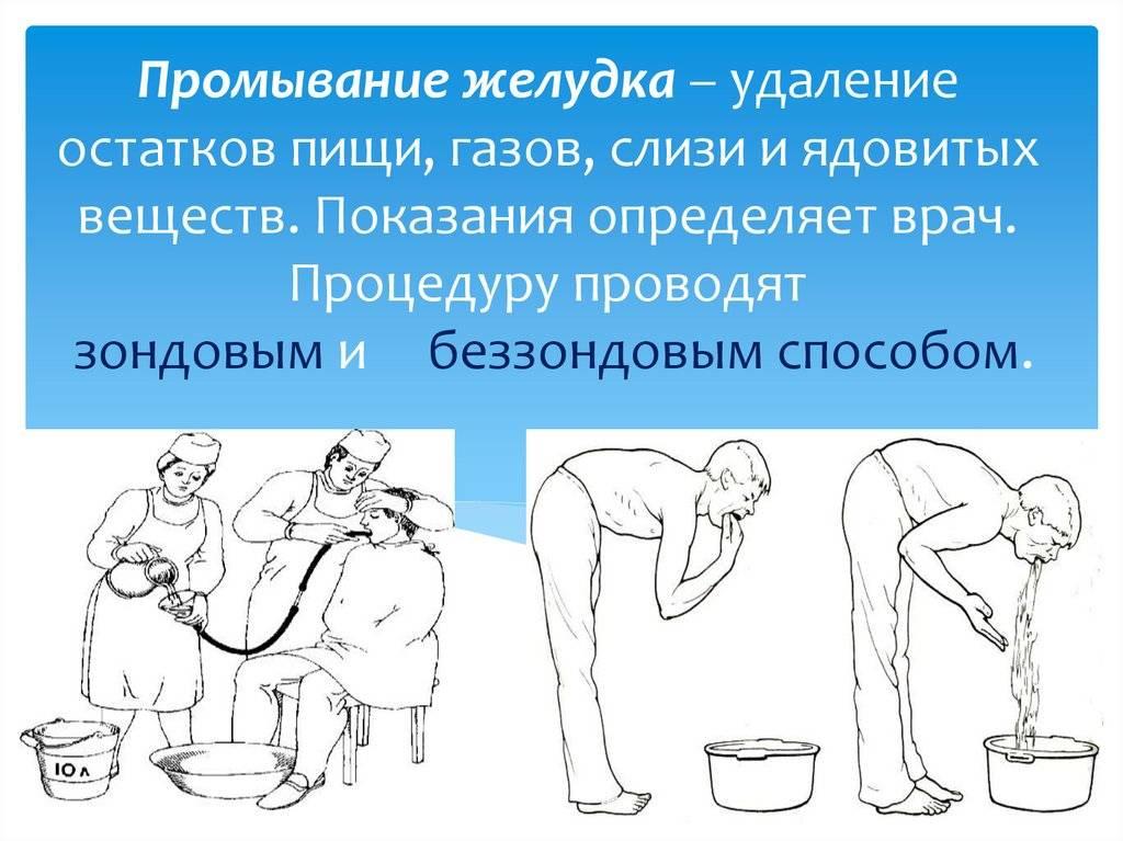 Промывание желудка — большая медицинская энциклопедия