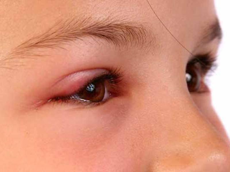Отек на веке одного глаза: причины возникновения и способы лечения - энциклопедия ochkov.net