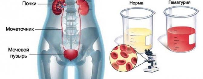 Кровь в моче у мужчин. причины, симптомы и лечение крови в моче у мужчин