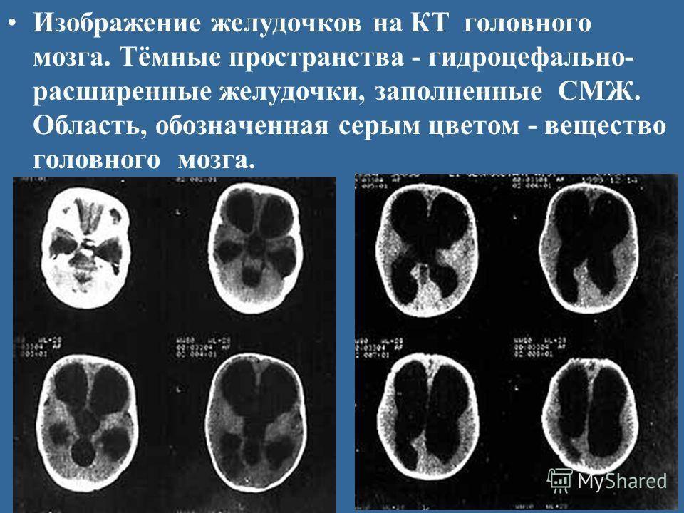 Геморрагический инсульт головного мозга — причины и симптомы, лечение и диагностика в цэлт.