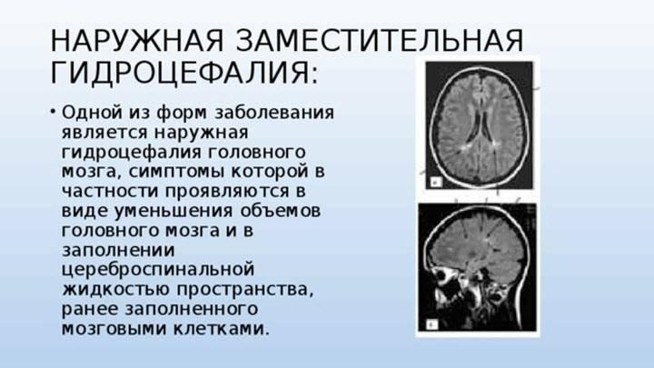 Гидроцефалия у детей. лечение гидроцефалии головного мозга у детей