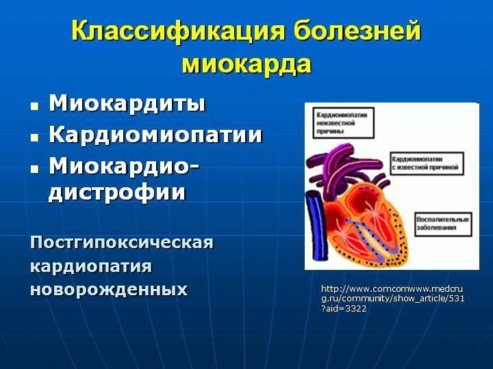 Кардиомиопатии