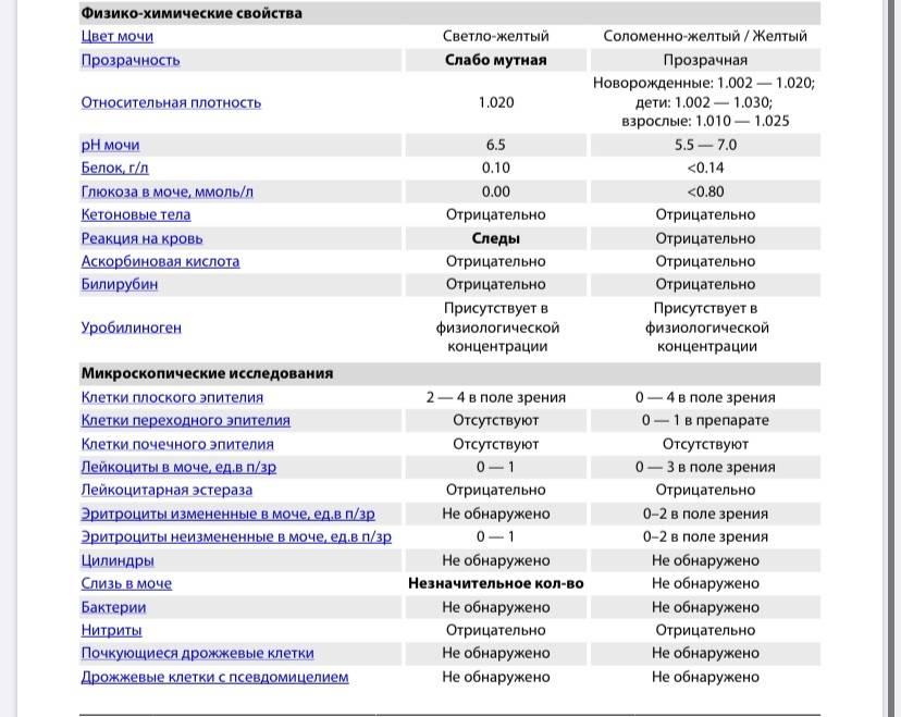 Лейкоциты и эритроциты в моче - анализ мочевого осадка