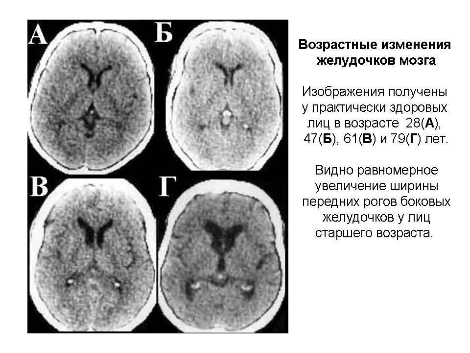 Гидроцефалия и внутричерепная гипертензия