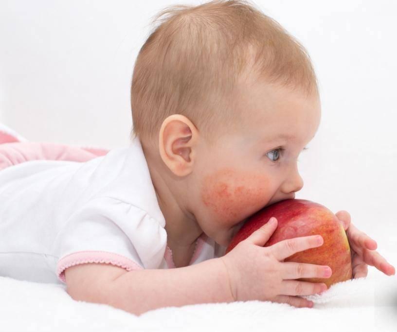 Лечебное питание при пищевой аллергии