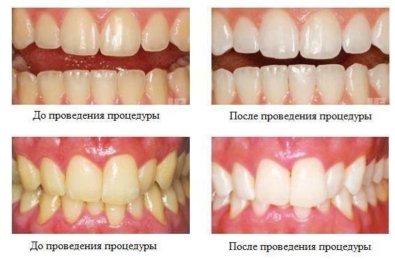 Покрытие зубов фторлаком - что это такое? цена, отзывы, фото до и после, чистка у детей