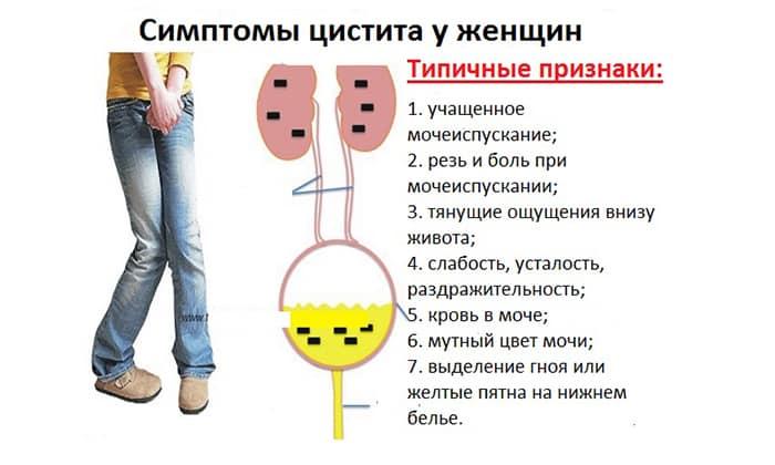 Частое мочеиспускание у женщин с болью: причины, лечение   компетентно о здоровье на ilive
