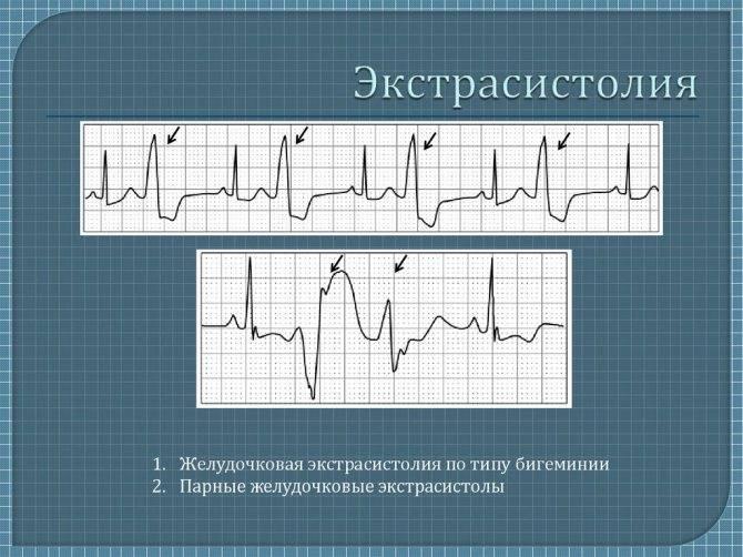 Как стать детским кардиологом?