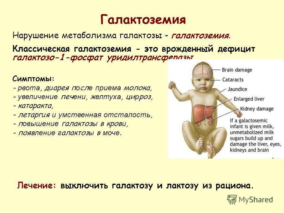 Аллергия на глютен у детей (целиакия): симптомы аллергии на глютен у ребенка