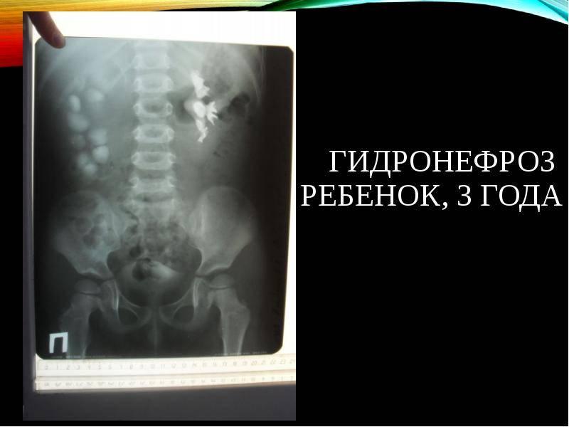 Пиелонефрит при беременности (болят почки) — симптомы, лечение, профилактика   «восьмая клиника»