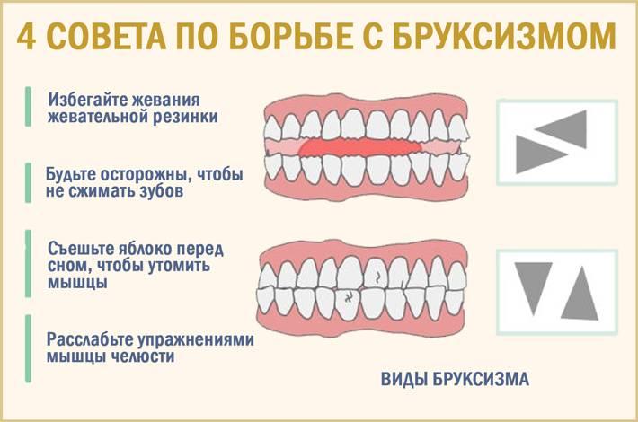 Бруксизм - скрежет зубами во сне: причины и лечение | ким