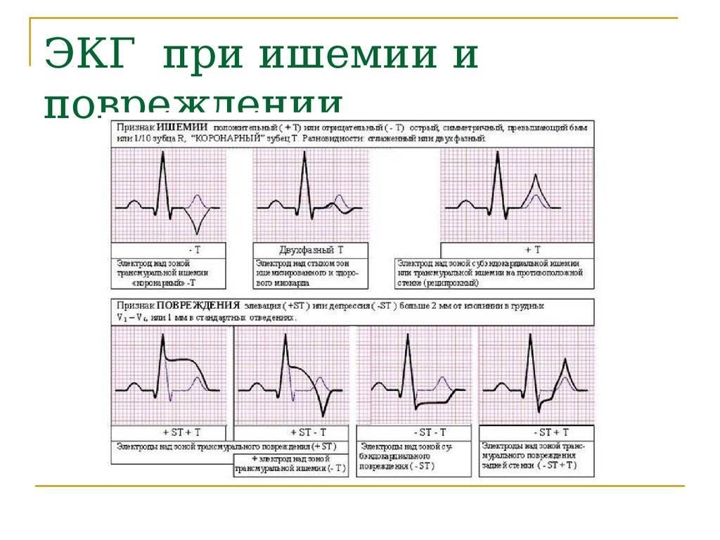 Узи сердца и экг: разница и показания к исследованию - rosmed.by