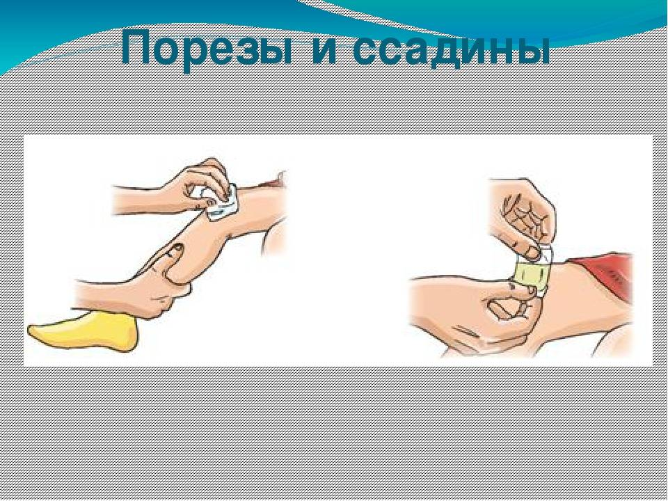 Что делать, если ребёнок порезал палец? Мануал для родителей