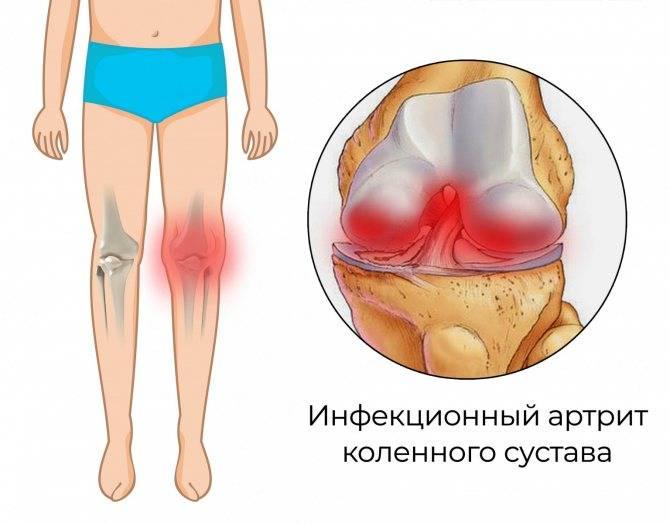 Болит колено: к какому врачу обращаться? причины боли в коленях при ходьбе и в покое. что делать, если опухло колено