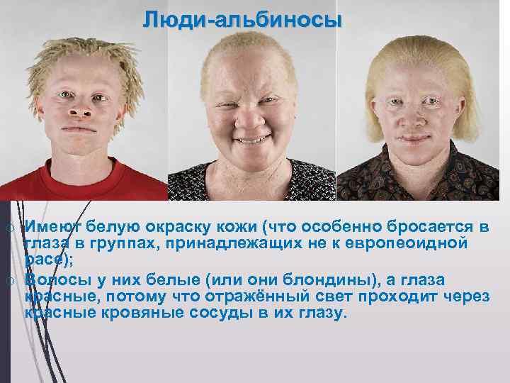 «белая ворона», или особенности здоровья и развития ребенка-альбиноса