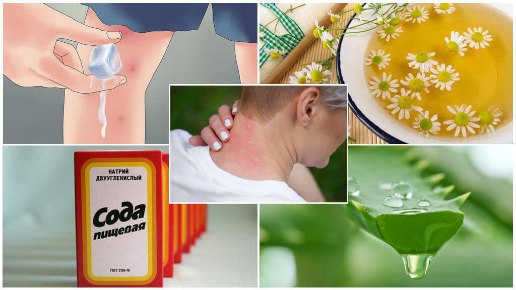 Аллергия на прокладки