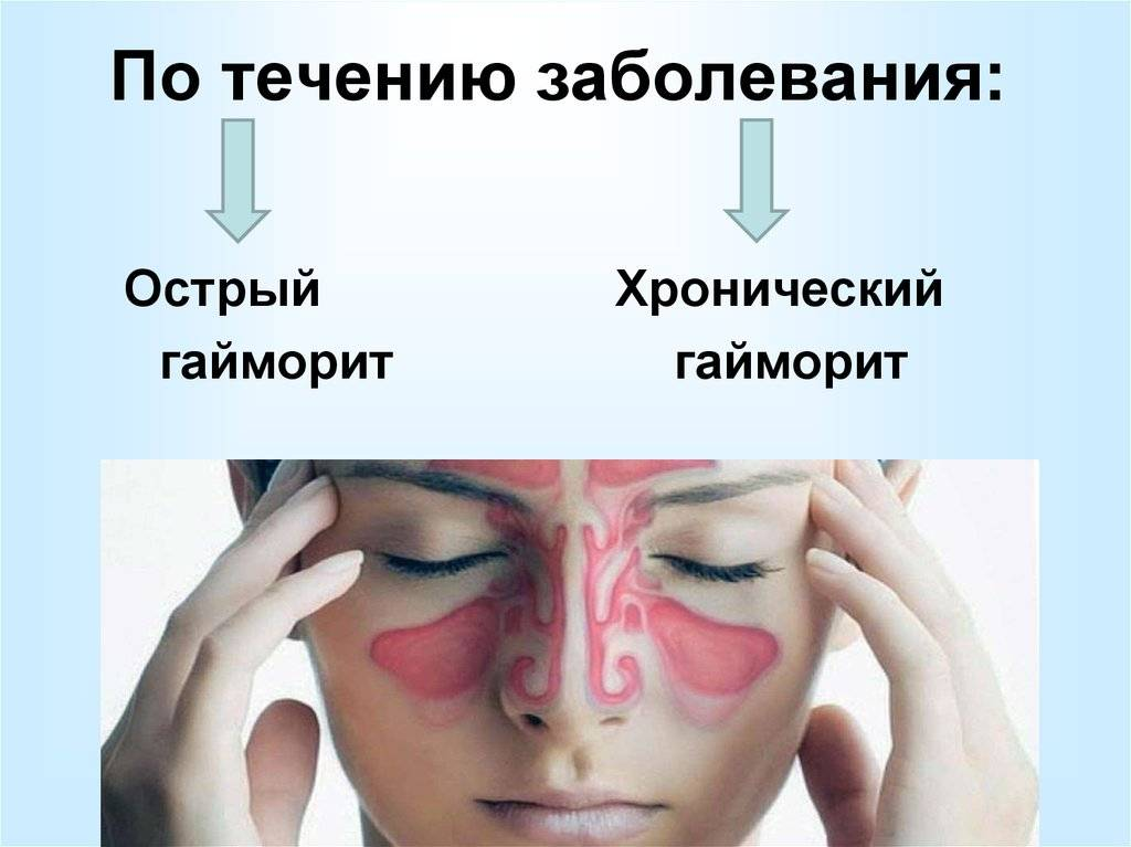 Синусит у ребенка | компетентно о здоровье на ilive