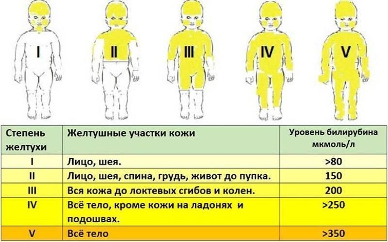 Желтуха у новорожденных: причины и последствия, признаки, когда должна пройти. сколько длится детская желтуха?