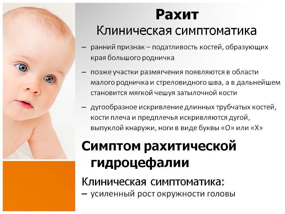 Рахит: причины и проявления - причины, диагностика и лечение