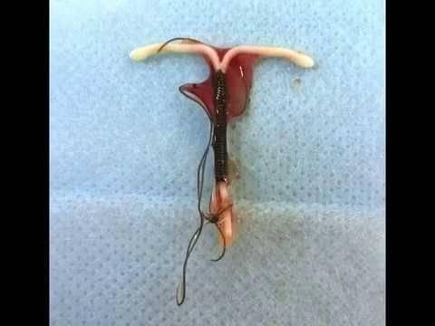 Какой метод контрацепции лучше для меня: противозачаточные против вмс