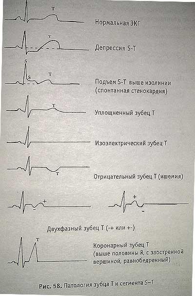 Особенности экг при остром инфаркте миокарда