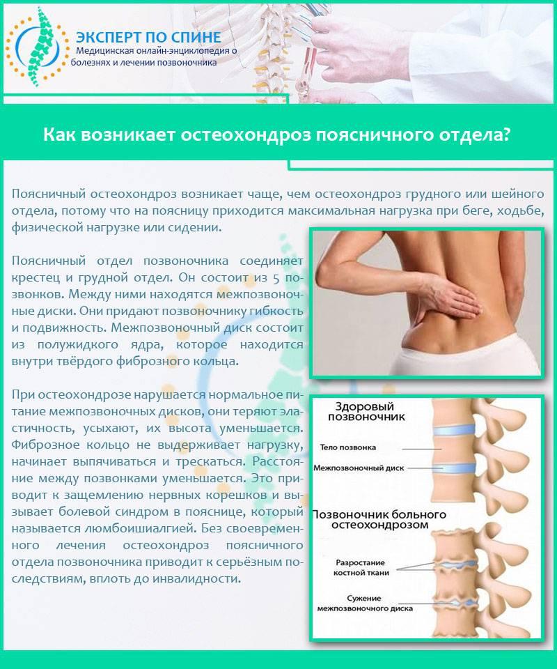 Остеохондроз: симптомы, методы диагностики и лечения остеохондроза. профилактика остеохондроза