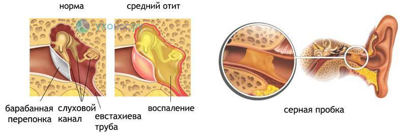 Что такое тубоотит: симптомы и лечение заболевания уха у детей