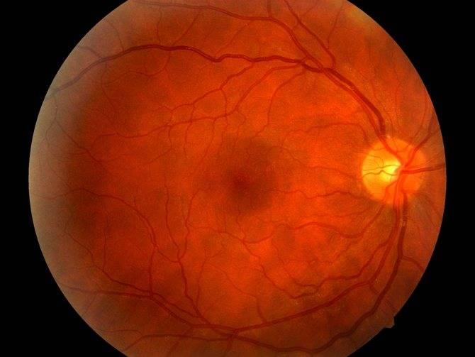 Ретинопатия недоношенных — википедия. что такое ретинопатия недоношенных