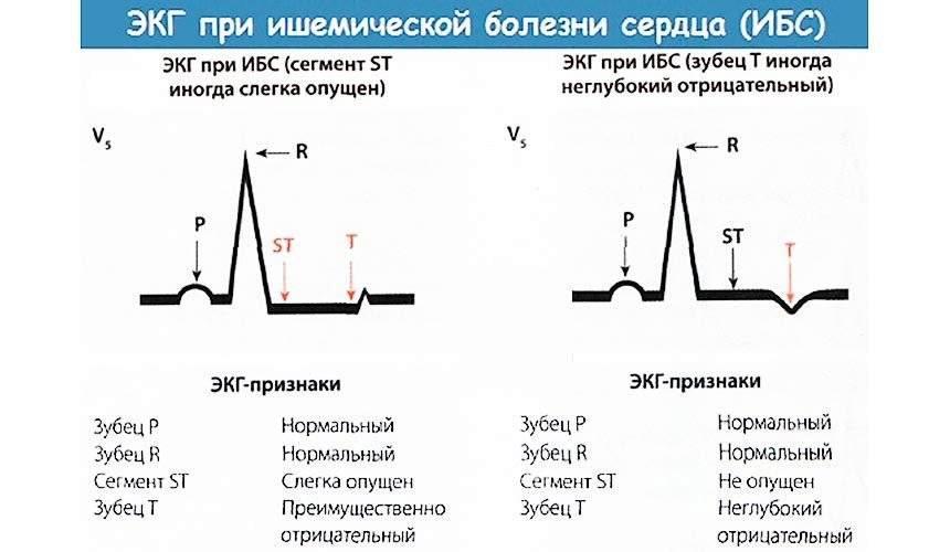 Основные элементы экг: что содержит график кардиограммы   университетская клиника