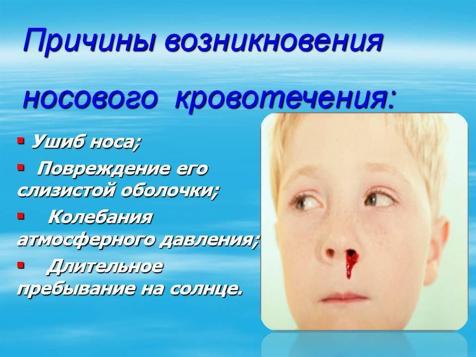 Носовое кровотечение: причины, симптомы, методы лечения