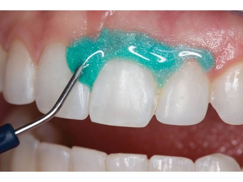 Покрытие зубов фторлаком