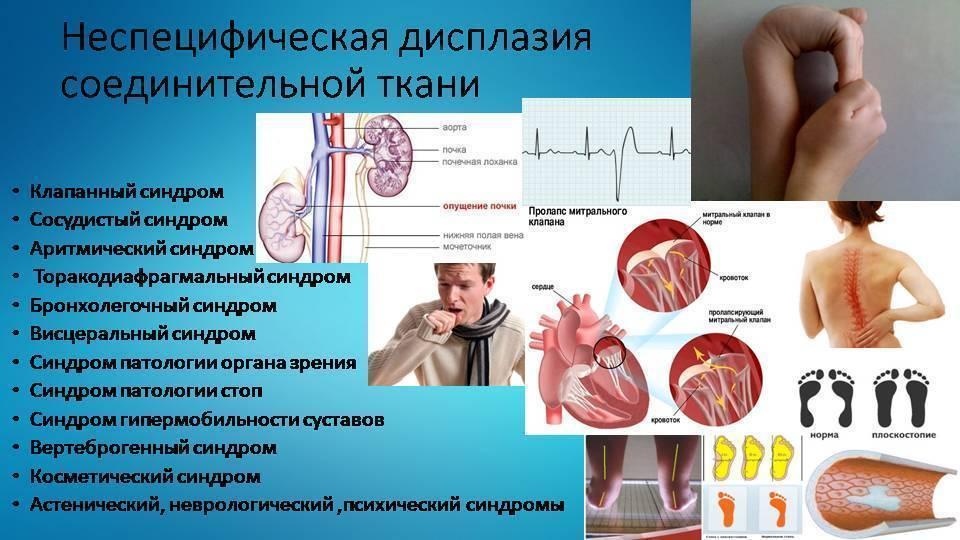 Дисплазия зубов |